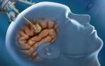Глиома: виды, лечение, прогноз жизни, симптомы и причины