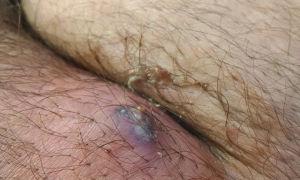 Лимфоузлы в паху: где находятся, причины воспаления, увеличения и боли