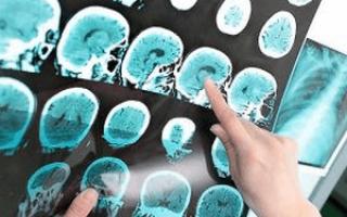 Гигрома головного мозга: виды, лечение, симптомы и причины