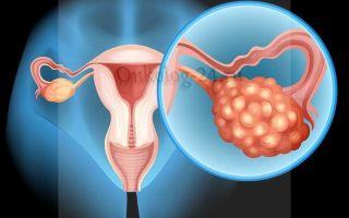 Цистаденома яичника: лечение, симптомы, диагностика, прогноз и классификация