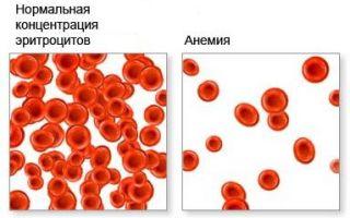 Эритропения: причины, виды, симптомы и лечение