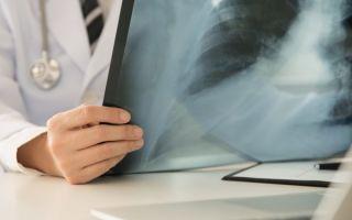 Карциноид: симптомы, прогноз, лечение, удаление и диагностика