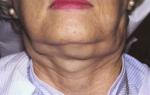 Неходжкинская лимфома: прогноз, лечение, стадии и симптомы