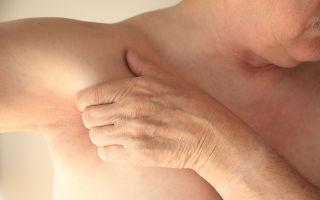 Подмышечные лимфоузлы: фото, причины увеличенных размеров и норма