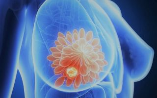 Сколько живут с раком груди: прогноз выживаемости при раке молочной железы