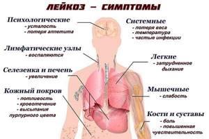 Надключичные лимфоузлы: фото, расположение, увеличенные и норма