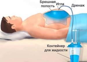 Канцероматоз: лечение, симптомы, прогноз, стадии и причины