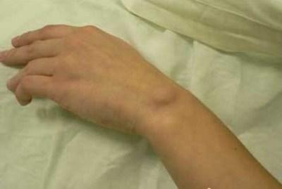 Жировик на руке под кожей: причины, фото, как избавиться