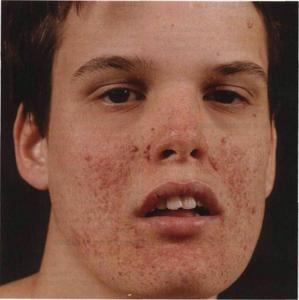 Ангиофиброма: виды, симптомы у детей, лечение и диагностика
