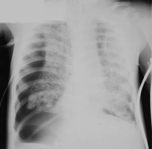 Хроническая гранулематозная болезнь: первичный иммунодефицит, симптомы и лечение