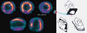 Сцинтиграфия миокарда: как проводится с нагрузкой и в покое, виды и результаты