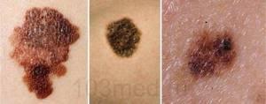 Рак кожи: фото начальной стадии, симптомы, лечение и диагностика