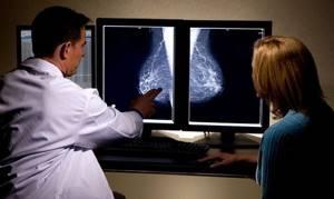 Рак молочной железы: симптомы, лечение, фото, причины и признаки на начальных стадиях