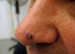 Лучевая терапия базалиомы: виды, последствия и лечение после облучения