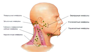 Воспаление лимфоузлов на шее: причины, симптомы, лечение