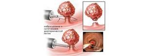Аденокарцинома сигмовидной кишки 2 стадия прогноз