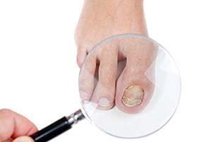 Меланома ногтя: фото начальной стадии, симптомы и лечение