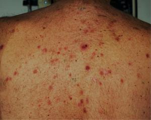 Лимфома кожи: фото, симптомы и лечение