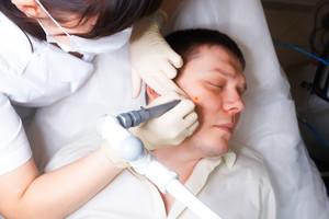 Фибропапиллома: симптомы, удаление на коже и десне, причины, лечение