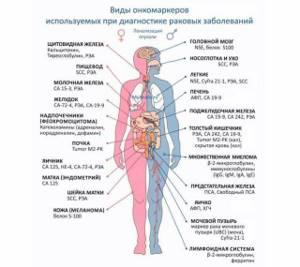 Онкомаркер молочной железы: какие сдавать, расшифровка, норма