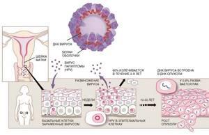 ВПЧ высокого онкогенного риска: как сдавать анализ, типы и лечение