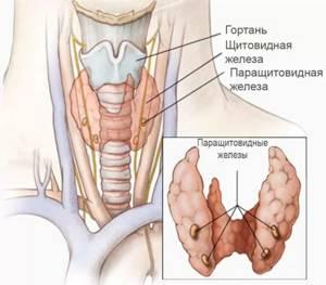Аденома паращитовидной железы: удаление, лечение, симптомы и прогноз жизни