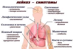 Лейкоз у детей: симптомы, причины, прогноз жизни и возможность лечения