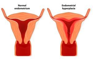Гиперплазия эндометрия: лечение, причины, симптомы и диагностика