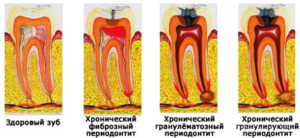Гранулематозный периодонтит: лечение, симптомы и обострение