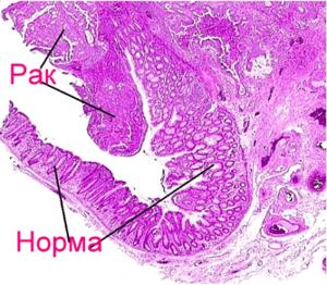 РЭА онкомаркер: расшифровка, норма у женщин и мужчин, что показывает