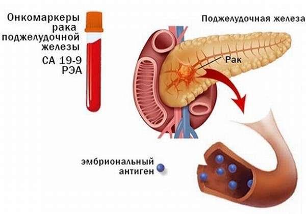 Онкомаркеры поджелудочной железы: норма и расшифровка
