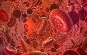 Миелома: лечение, симптомы, стадии, прогноз жизни, виды и причины