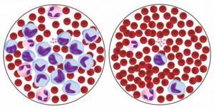 Лимфоцитопения: причины, симптомы, лечение и рекомендации