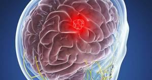 Доброкачественная опухоль головного мозга: симптомы, лечение, удаление и продолжительность жизни