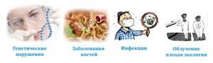 Саркома бедра: фото, симптомы, причины и прогноз