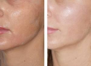 Фотодинамическая терапия: метод лечения в онкологии, косметологии и гинекологии, побочные эффекты