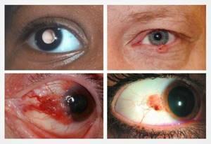 Рак глаза: симптомы, фото, причины, лечение и стадии