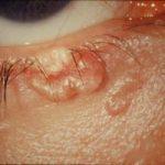 Эпителиома: виды, симптомы, причины, диагностика и лечение