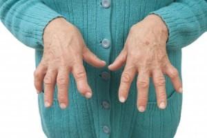 Эссенциальная тромбоцитемия: симптомы, лечение, продолжительность жизни