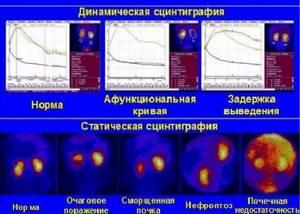 Что такое радионуклидная диагностика почек или сцинтиграфия