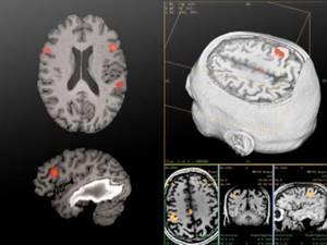 Метастазы в головном мозге: симптомы, продолжительность жизни и лечение