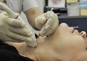 Биопсия лимфоузла: как проводится, что показывает, виды и подготовка