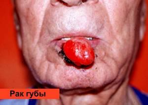 Рак десны: симптомы, фото начальной стадии, причины и лечение