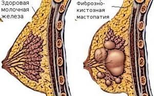 Диффузная фиброзно-кистозная мастопатия: лечение, признаки и формы