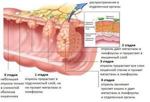 Рак сигмовидной кишки: стадии, первые симптомы, прогноз после операции
