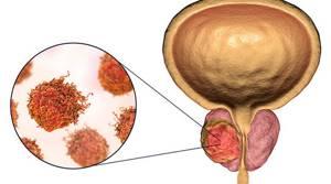 Тест на рак простаты: уровень ПСА, норма в анализе, показания