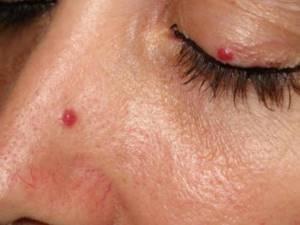 Ангиома: фото, симптомы, лечение и удаление