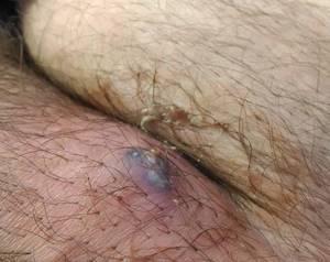 Воспаление лимфатических узлов в паху