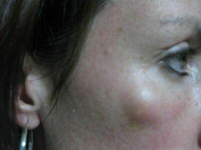Жировики на лице: фото, причины, как быстро избавиться