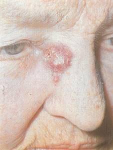 Базальноклеточный рак кожи: фото начальной стадии, лечение, прогноз и симптомы